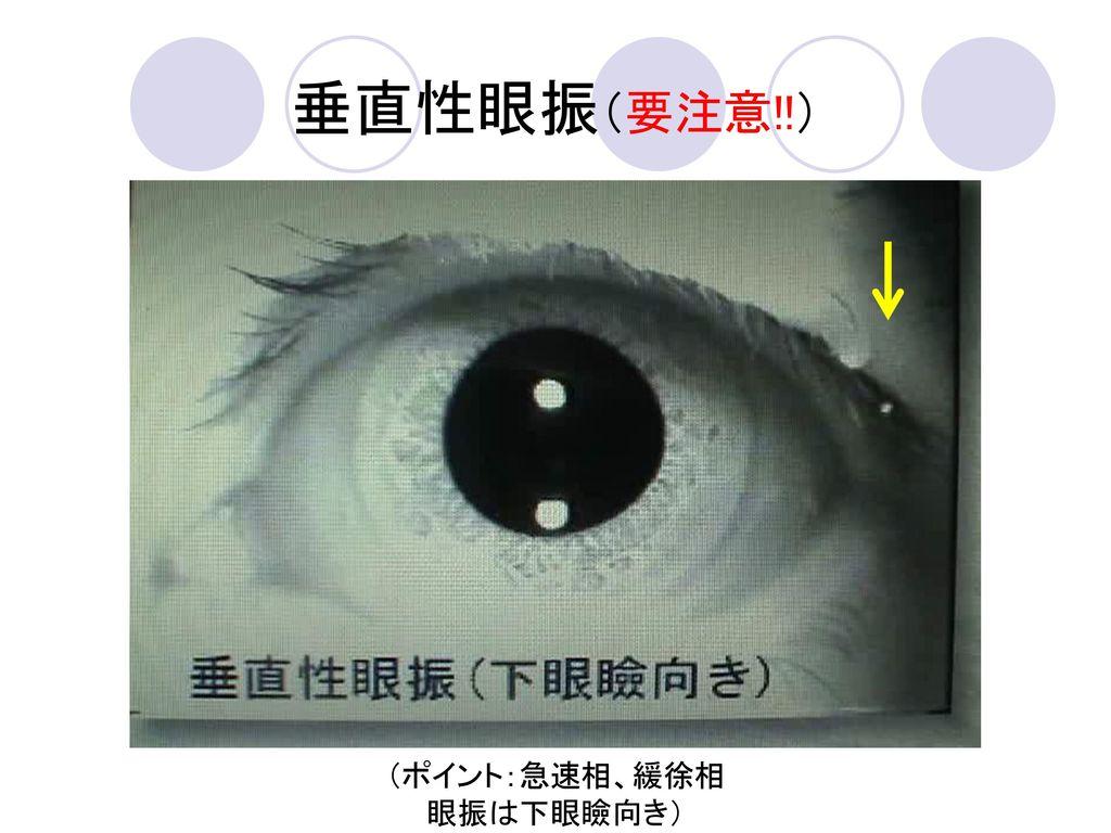 垂直性眼振(要注意!!) (ポイント:急速相、緩徐相 眼振は下眼瞼向き)