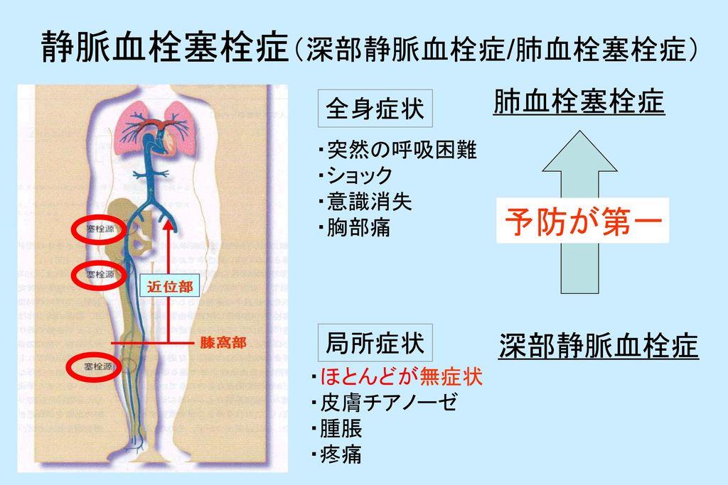 静脈血栓塞栓症(深部静脈血栓症/肺血栓塞栓症)