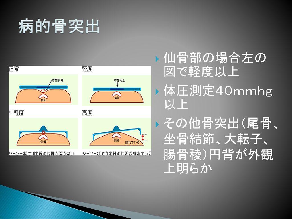病的骨突出 仙骨部の場合左の 図で軽度以上 体圧測定40mmhg 以上