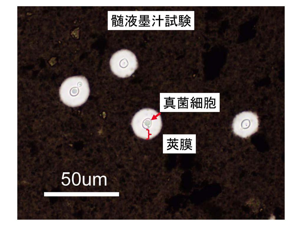 髄液墨汁試験 真菌細胞 莢膜