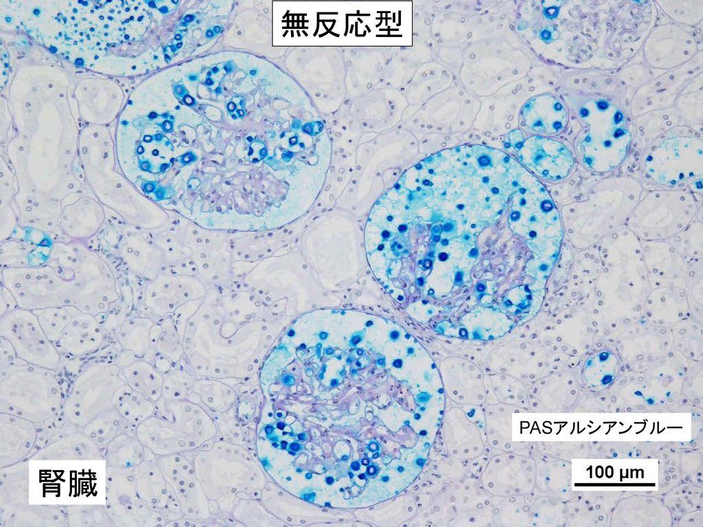 無反応型 PASアルシアンブルー 腎臓