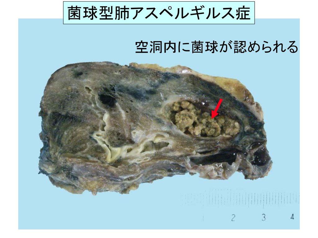 菌球型肺アスペルギルス症 空洞内に菌球が認められる