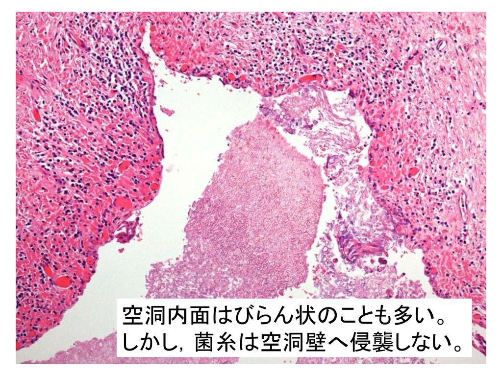 空洞内面はびらん状のことも多い。 しかし,菌糸は空洞壁へ侵襲しない。