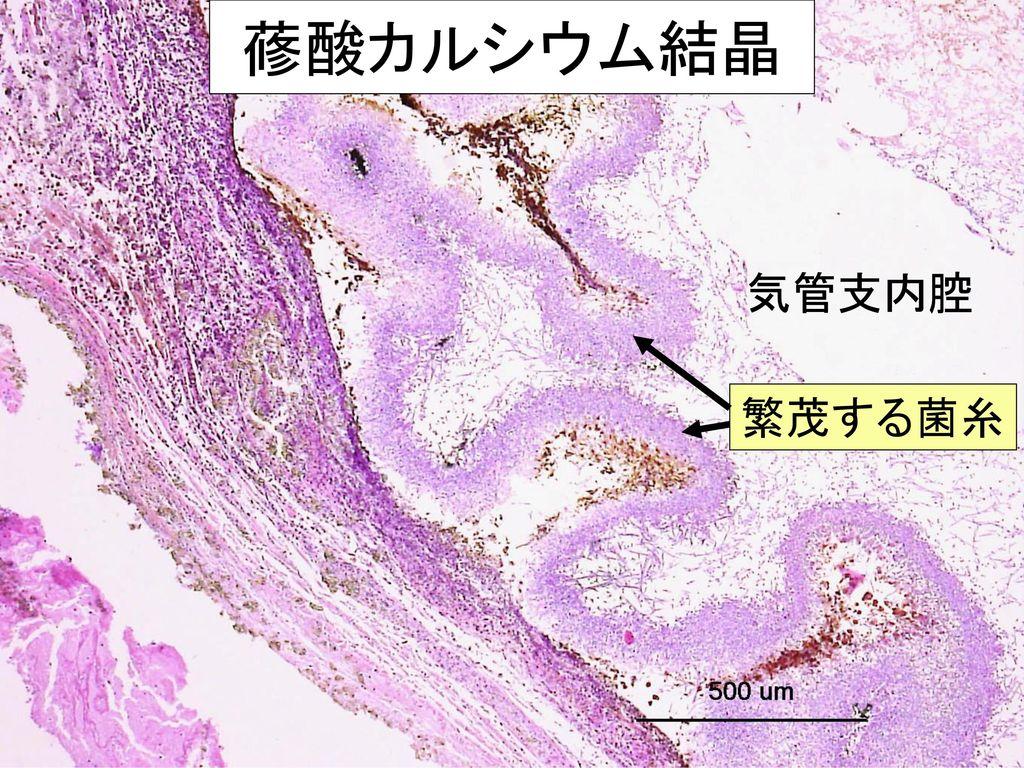 蓚酸カルシウム結晶 気管支内腔 繁茂する菌糸