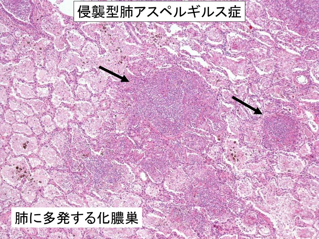 侵襲型肺アスペルギルス症 肺に多発する化膿巣