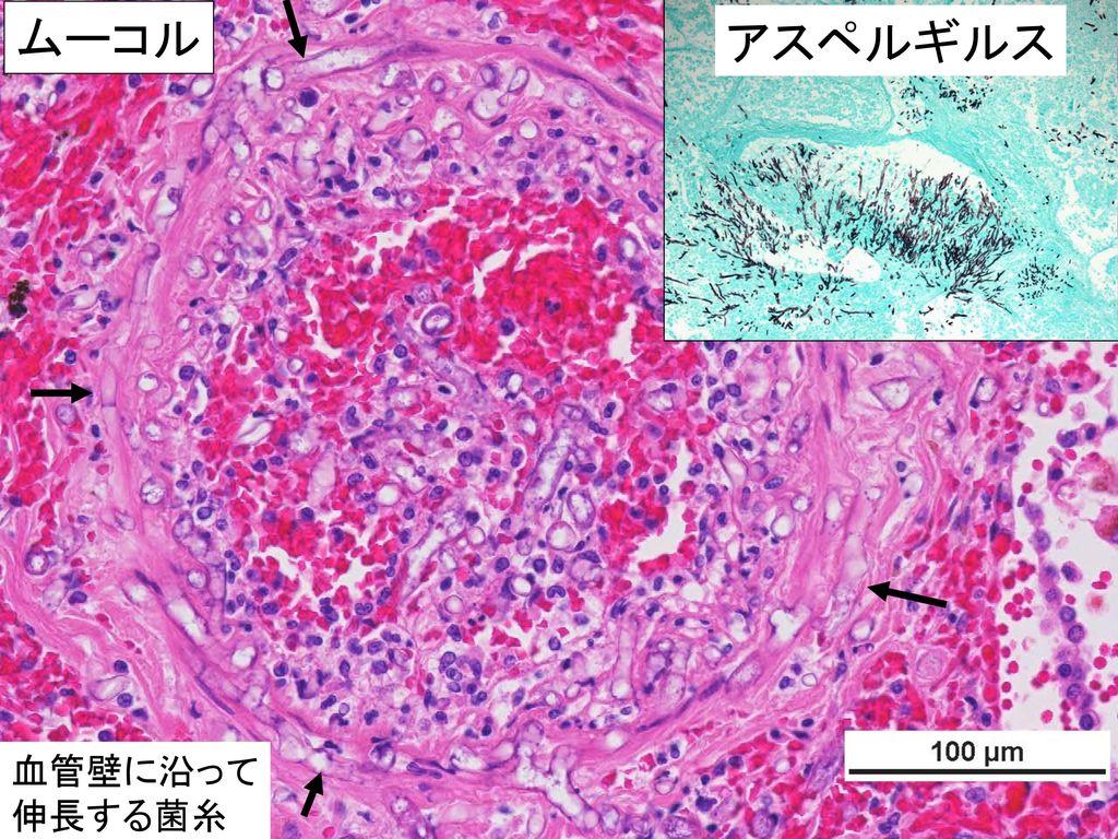 ムーコル アスペルギルス 血管壁に沿って 伸長する菌糸
