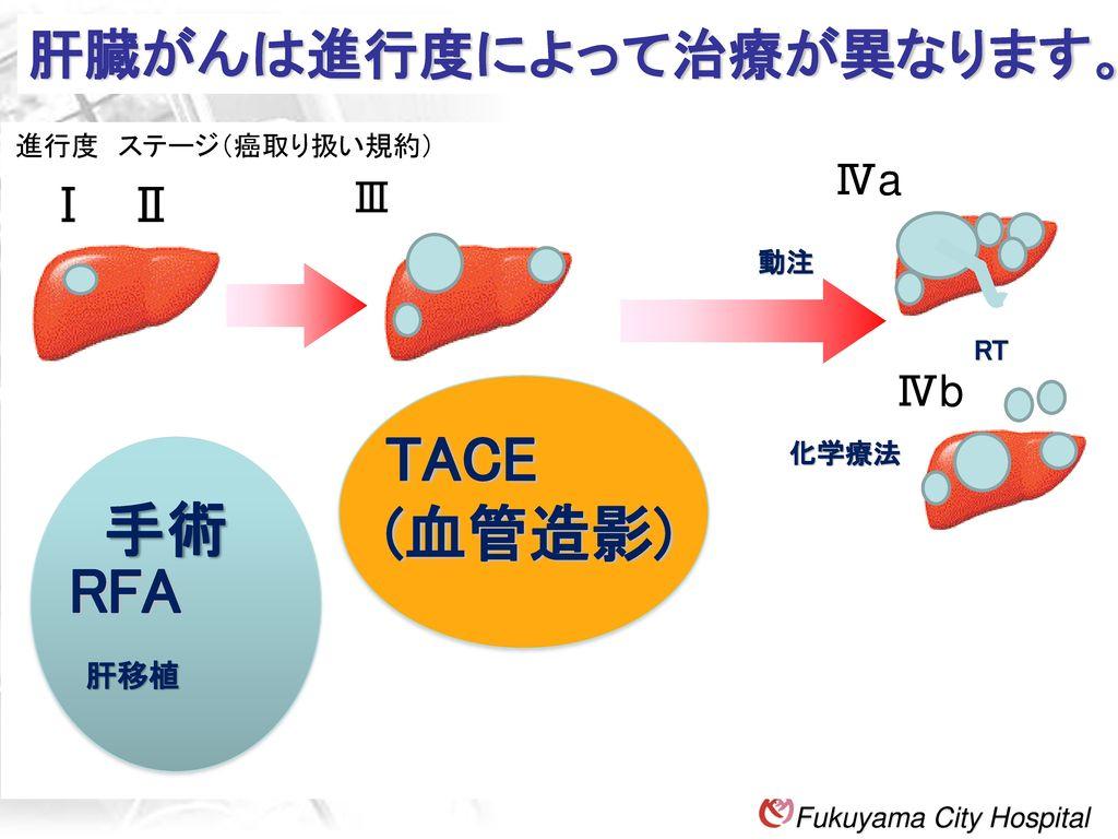 肝臓がんは進行度によって治療が異なります。