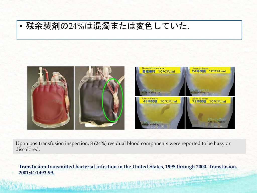 残余製剤の24%は混濁または変色していた. Upon posttransfusion inspection, 8 (24%) residual blood components were reported to be hazy or discolored.