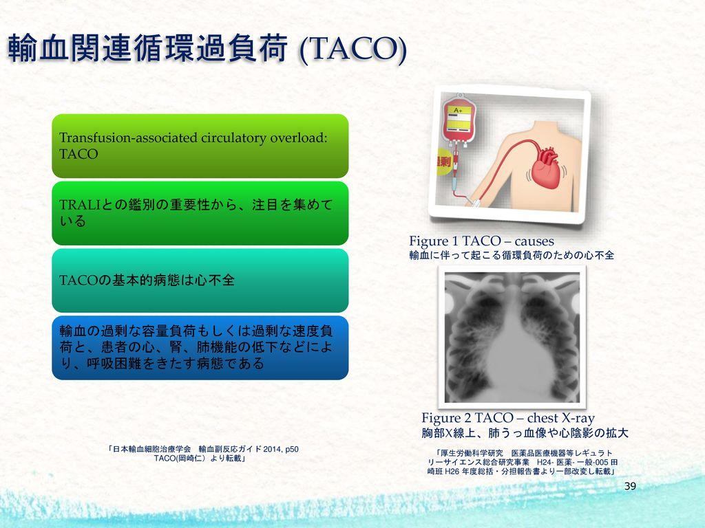 「日本輸血細胞治療学会 輸血副反応ガイド 2014, p50 TACO(岡崎仁)より転載」