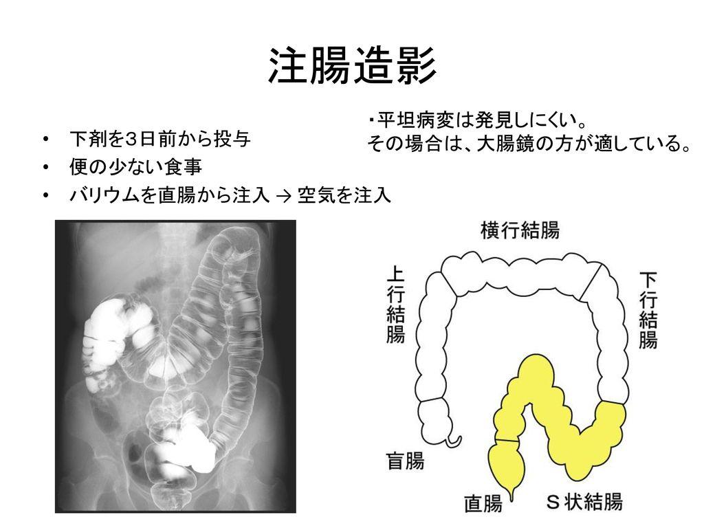 注腸造影 ・平坦病変は発見しにくい。 その場合は、大腸鏡の方が適している。 下剤を3日前から投与 便の少ない食事