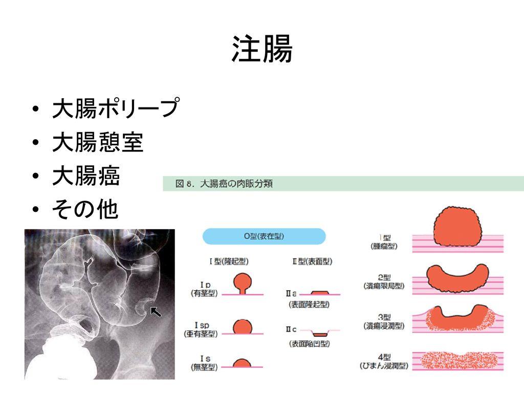 注腸 大腸ポリープ 大腸憩室 大腸癌 その他