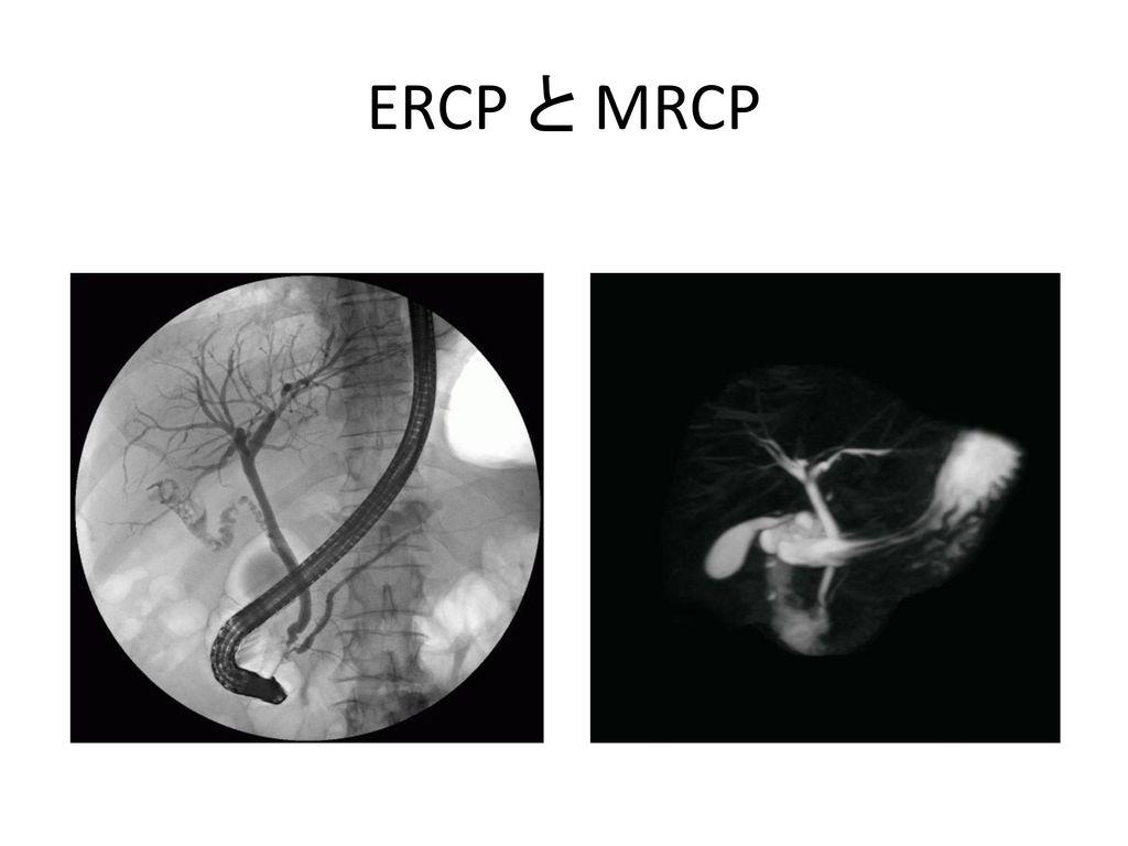 ERCP と MRCP