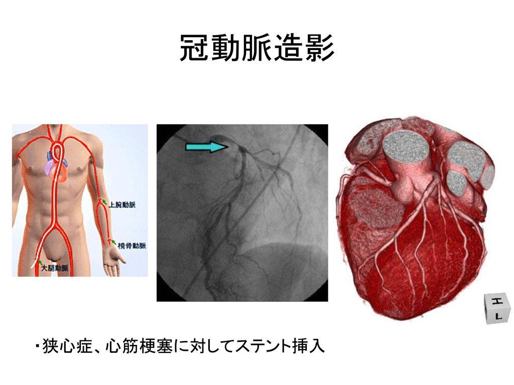 冠動脈造影 ・狭心症、心筋梗塞に対してステント挿入