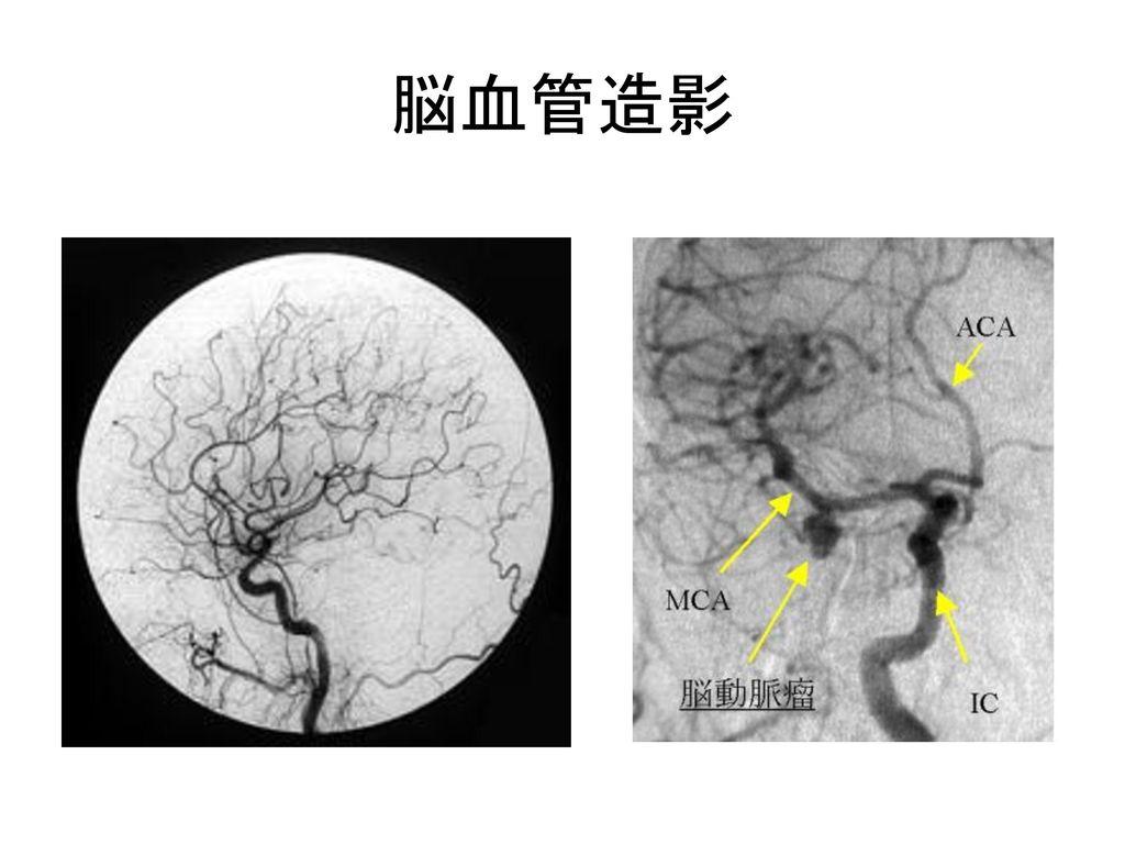 脳血管造影