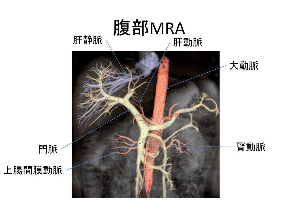 腹部MRA 肝静脈 肝動脈 大動脈 腎動脈 門脈 上腸間膜動脈