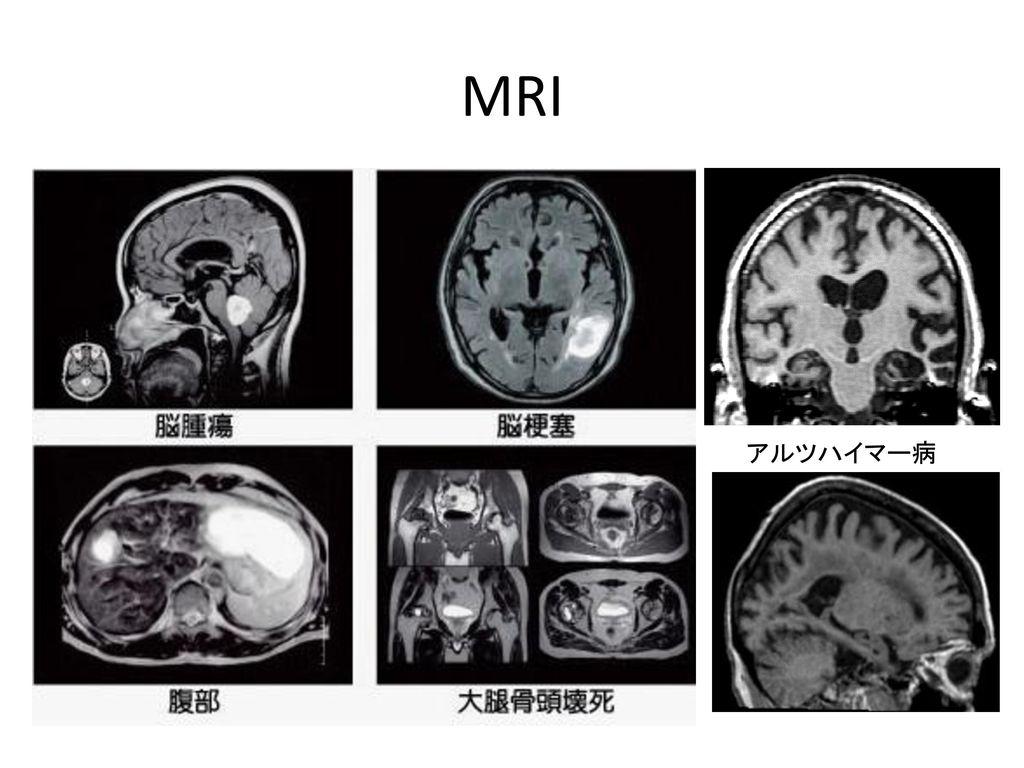 MRI アルツハイマー病