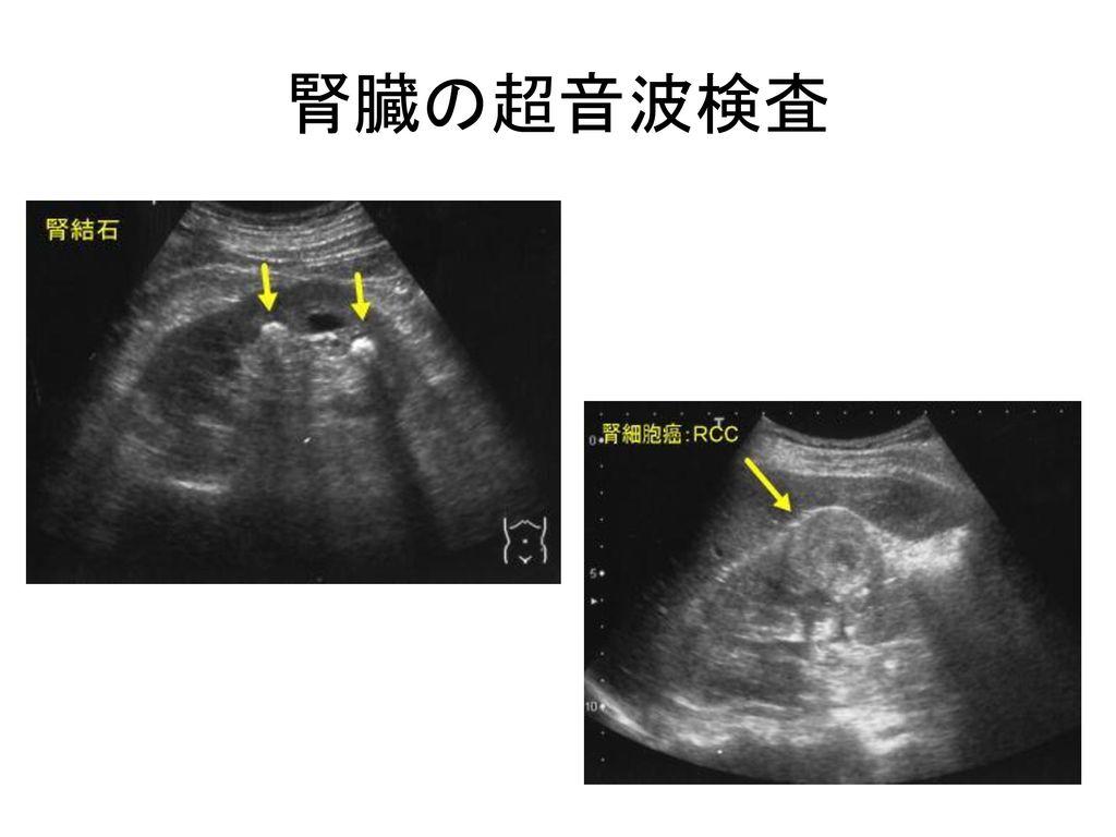 腎臓の超音波検査
