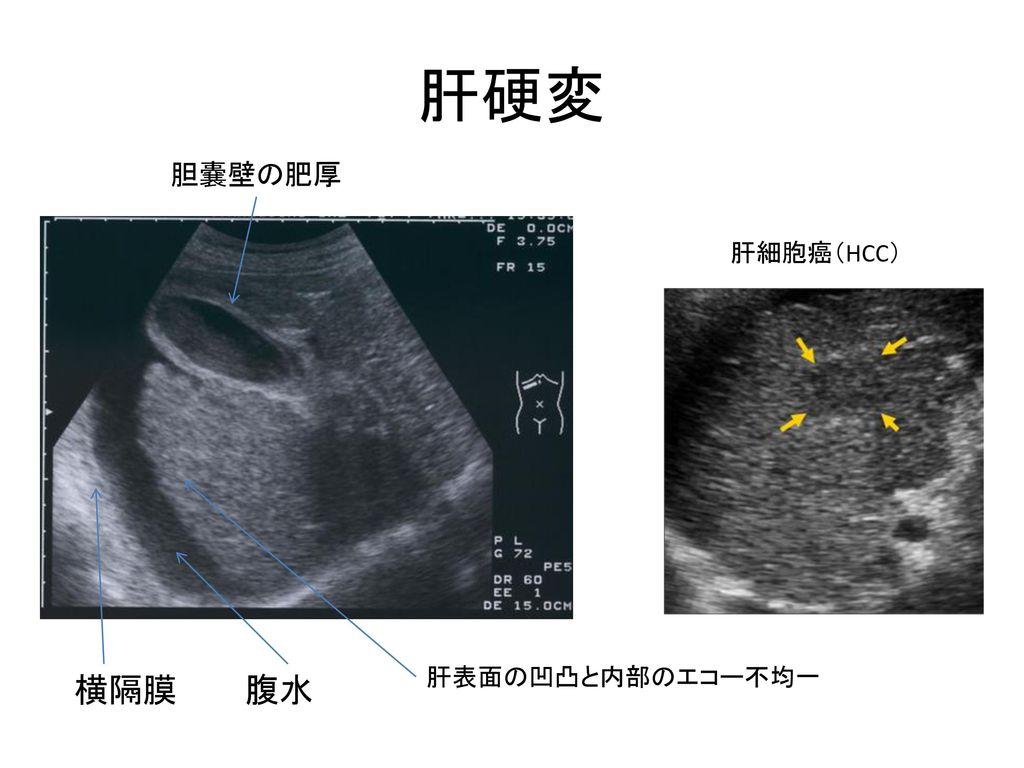 肝硬変 胆嚢壁の肥厚 肝細胞癌(HCC) 肝表面の凹凸と内部のエコー不均一 横隔膜 腹水