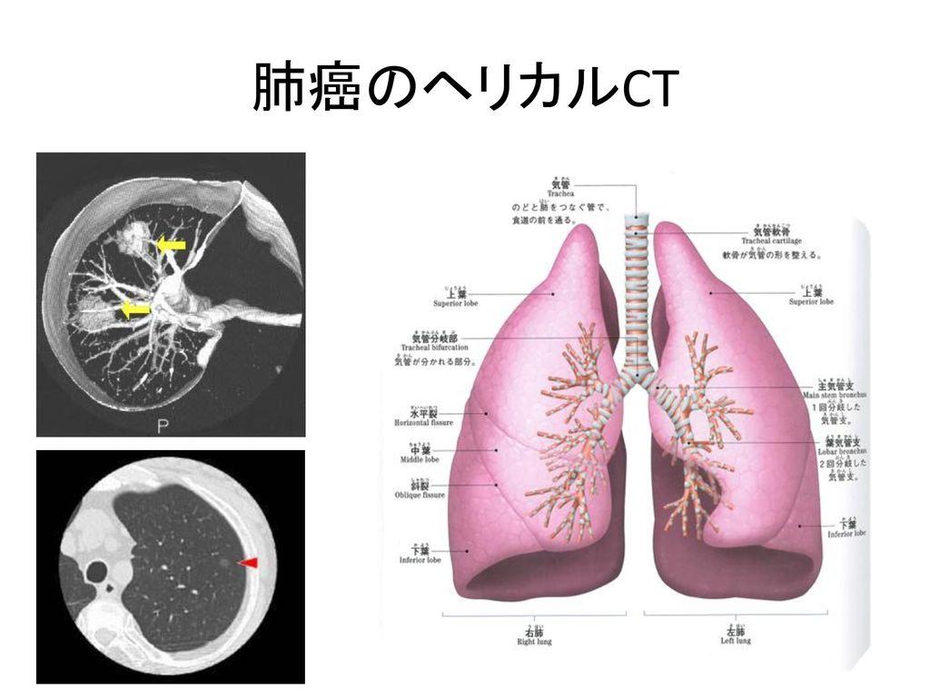 肺癌のヘリカルCT