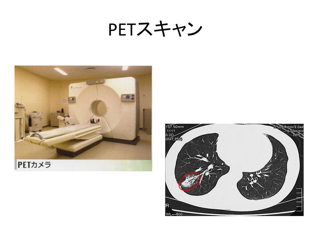 PETスキャン