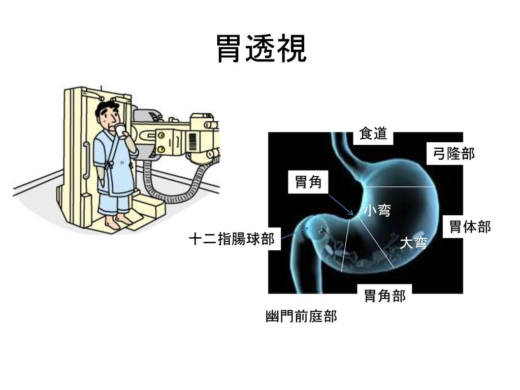 胃透視 食道 弓隆部 胃角 小弯 胃体部 十二指腸球部 大弯 胃角部 幽門前庭部