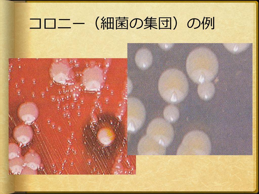 コロニー(細菌の集団)の例