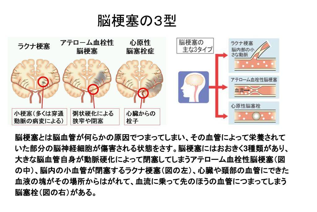 脳梗塞の3型