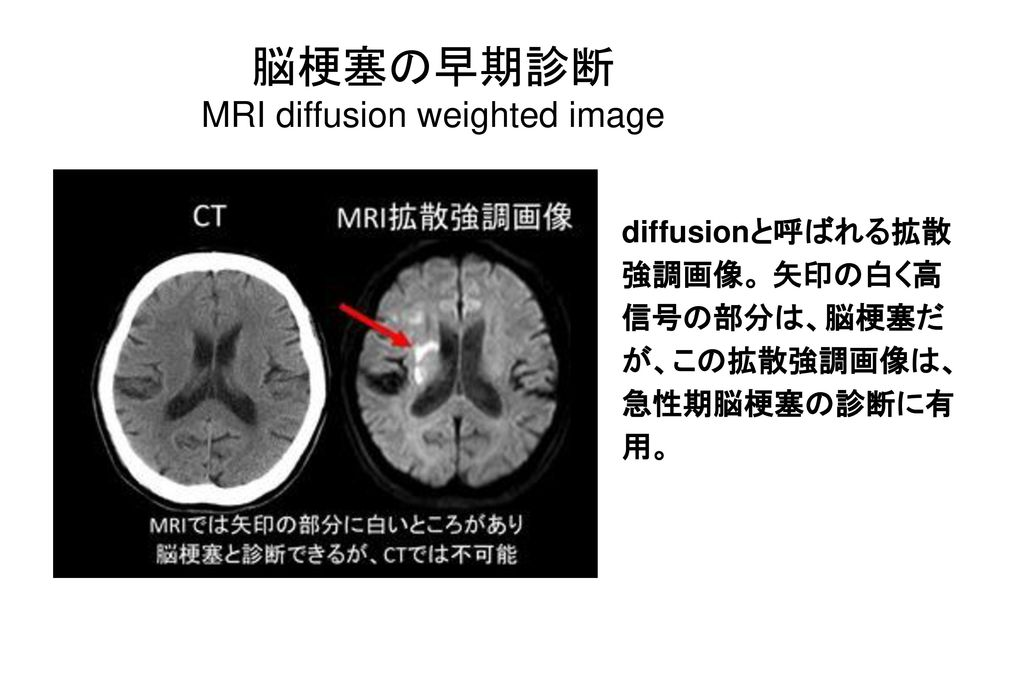MRI diffusion weighted image