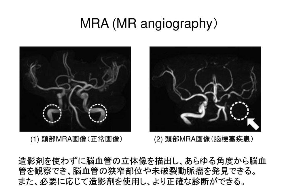 MRA (MR angiography) (1) 頭部MRA画像(正常画像) (2) 頭部MRA画像(脳梗塞疾患) 造影剤を使わずに脳血管の立体像を描出し、あらゆる角度から脳血管を観察でき、脳血管の狭窄部位や未破裂動脈瘤を発見できる。