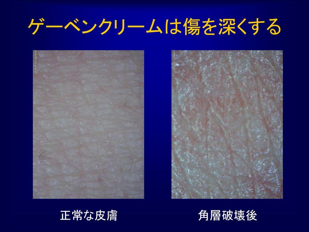 ゲーベンクリームは傷を深くする 正常な皮膚 角層破壊後