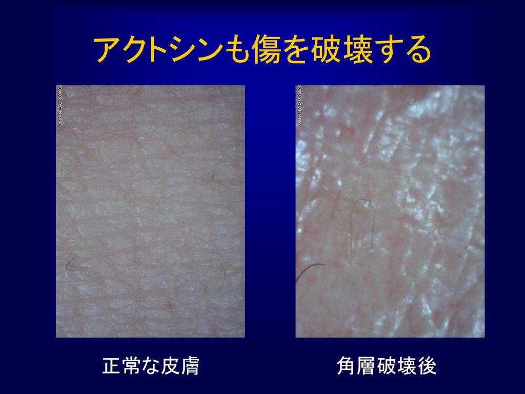 アクトシンも傷を破壊する 正常な皮膚 角層破壊後