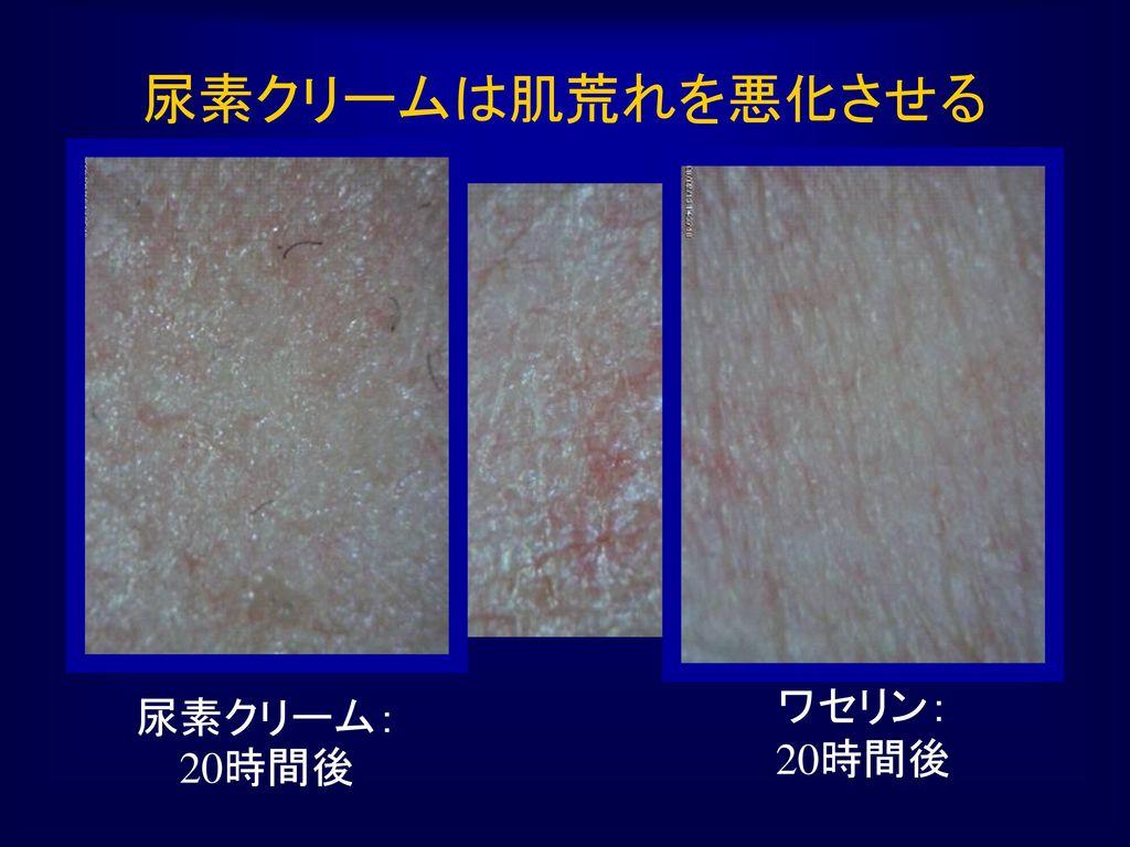 尿素クリームは肌荒れを悪化させる 尿素クリーム:20時間後 ワセリン: 20時間後
