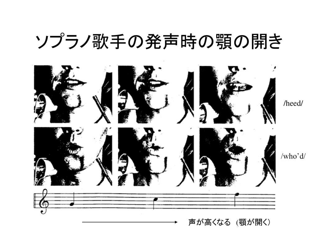 ソプラノ歌手の発声時の顎の開き /heed/ /who'd/ 声が高くなる (顎が開く)