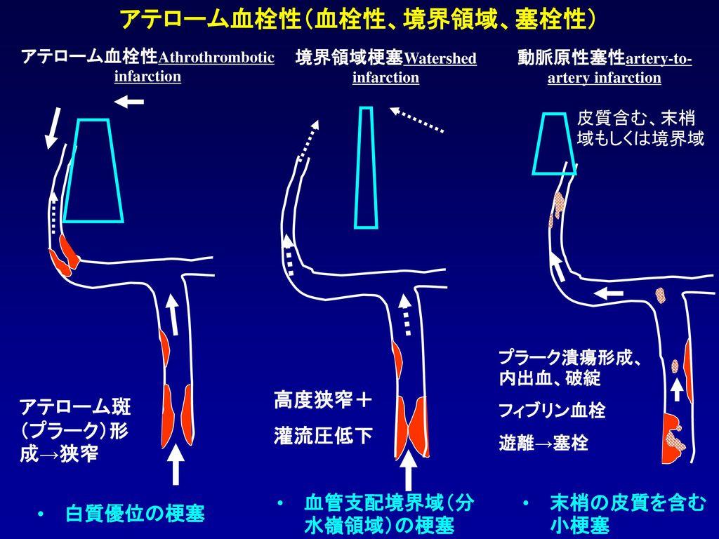 アテローム血栓性(血栓性、境界領域、塞栓性)