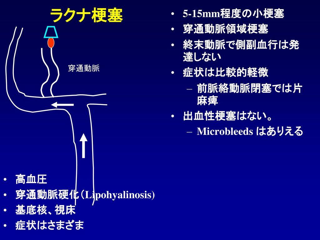ラクナ梗塞 5-15mm程度の小梗塞 穿通動脈領域梗塞 終末動脈で側副血行は発達しない 症状は比較的軽微 前脈絡動脈閉塞では片麻痺