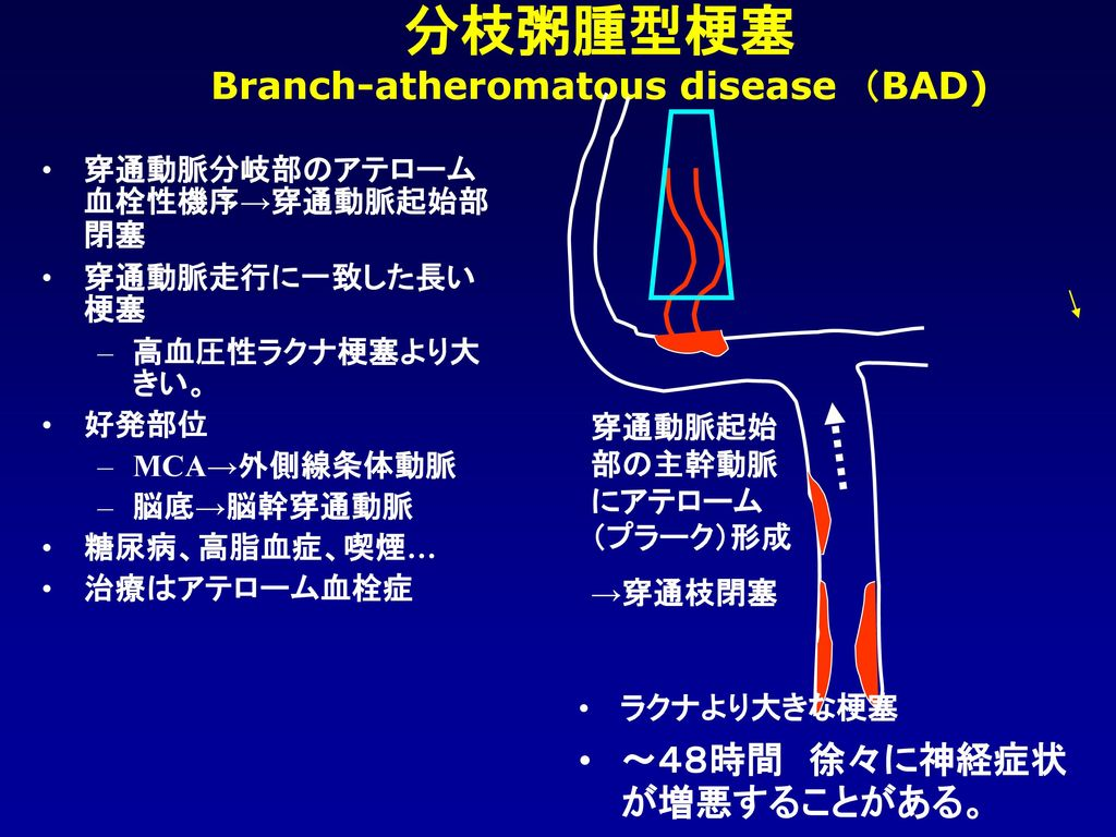 Branch-atheromatous disease (BAD)