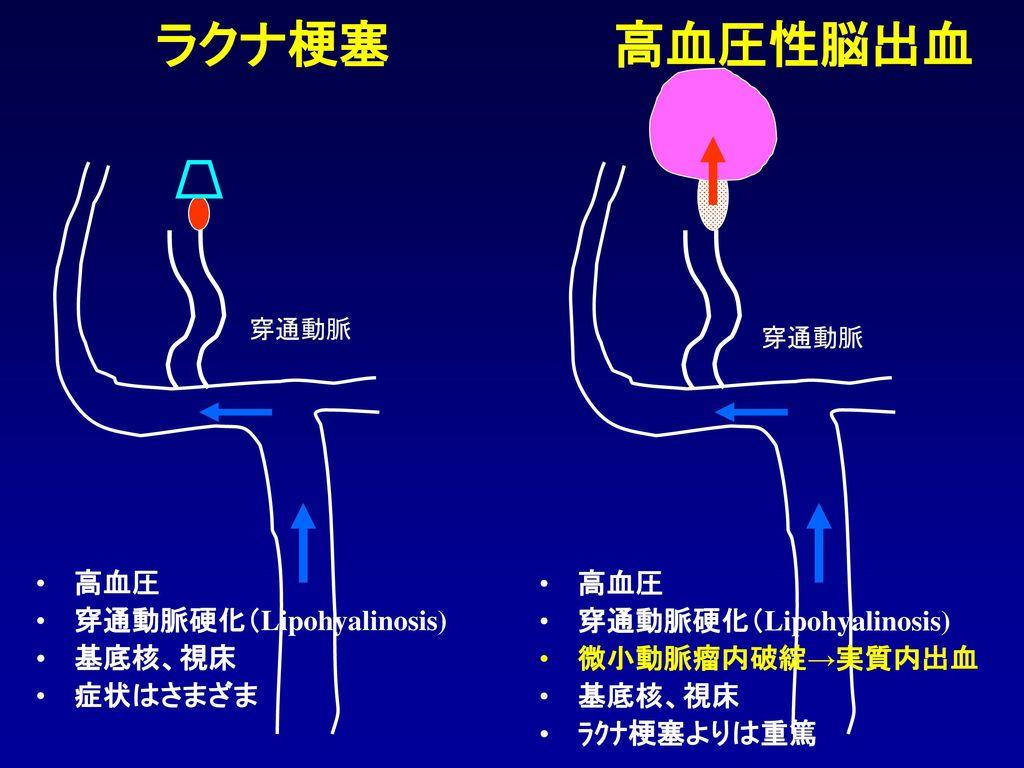 ラクナ梗塞 高血圧性脳出血 高血圧 穿通動脈硬化(Lipohyalinosis) 基底核、視床 症状はさまざま 高血圧