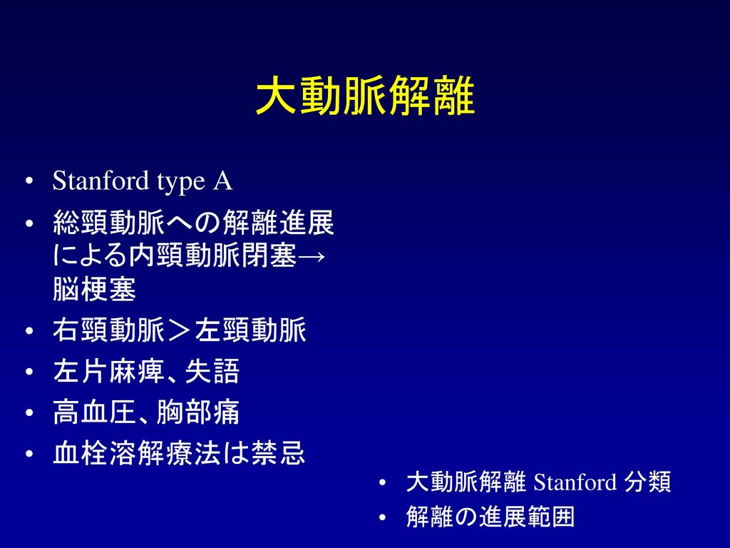 大動脈解離 Stanford type A 総頸動脈への解離進展による内頸動脈閉塞→脳梗塞 右頸動脈>左頸動脈 左片麻痺、失語