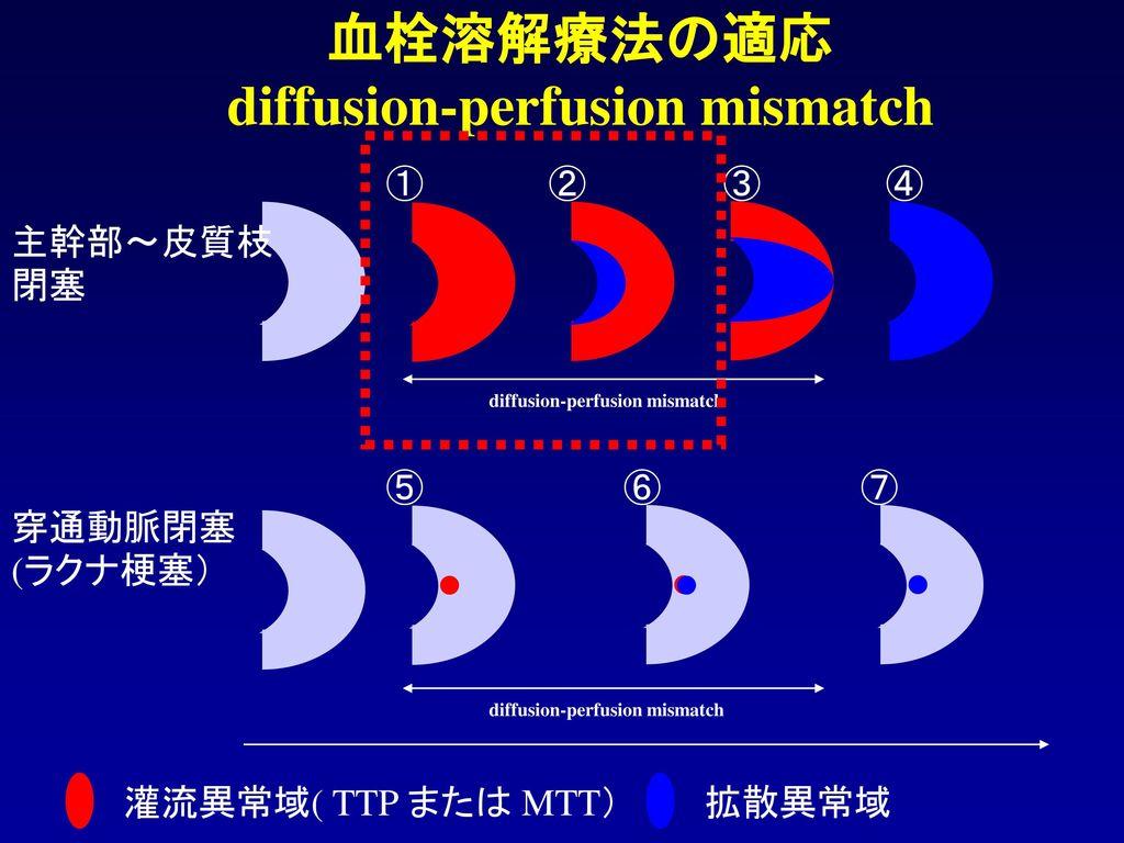 血栓溶解療法の適応 diffusion-perfusion mismatch