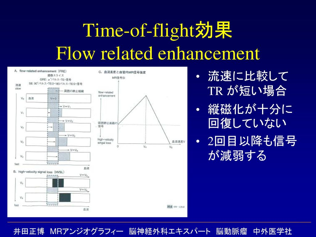 Time-of-flight効果 Flow related enhancement