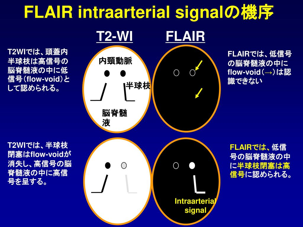 FLAIR intraarterial signalの機序