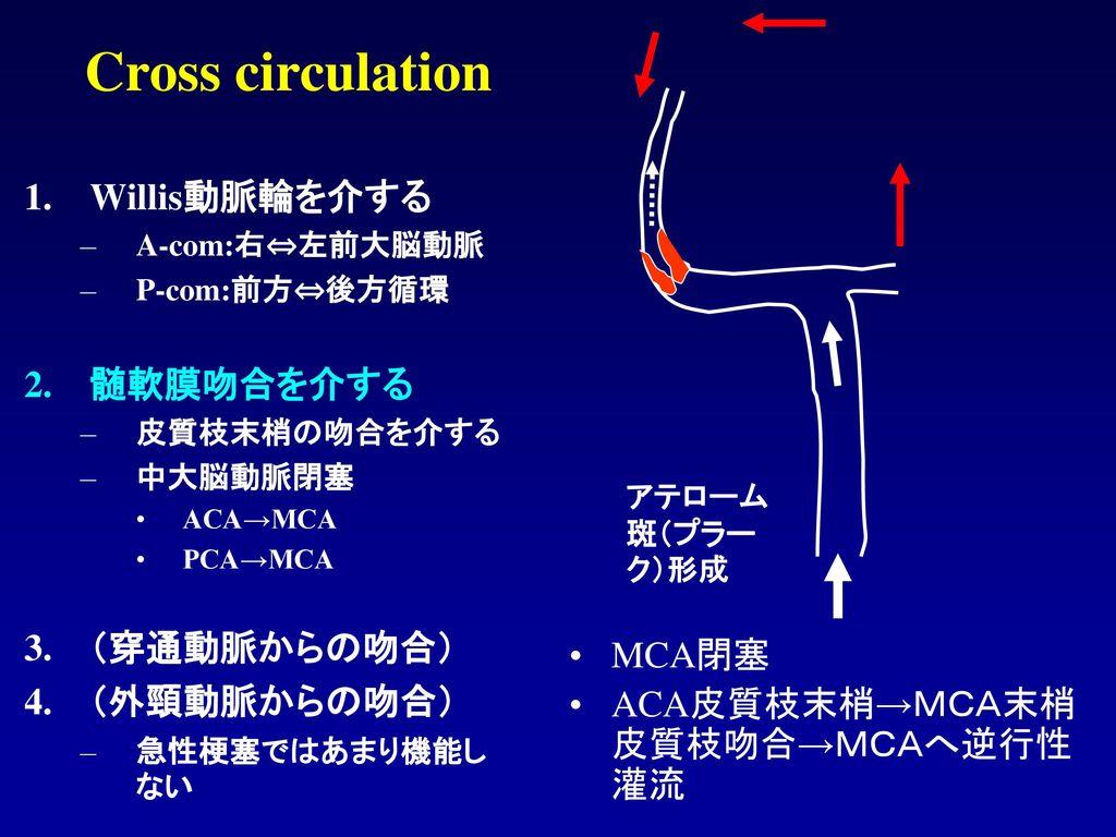 Cross circulation Willis動脈輪を介する 髄軟膜吻合を介する (穿通動脈からの吻合) (外頸動脈からの吻合)