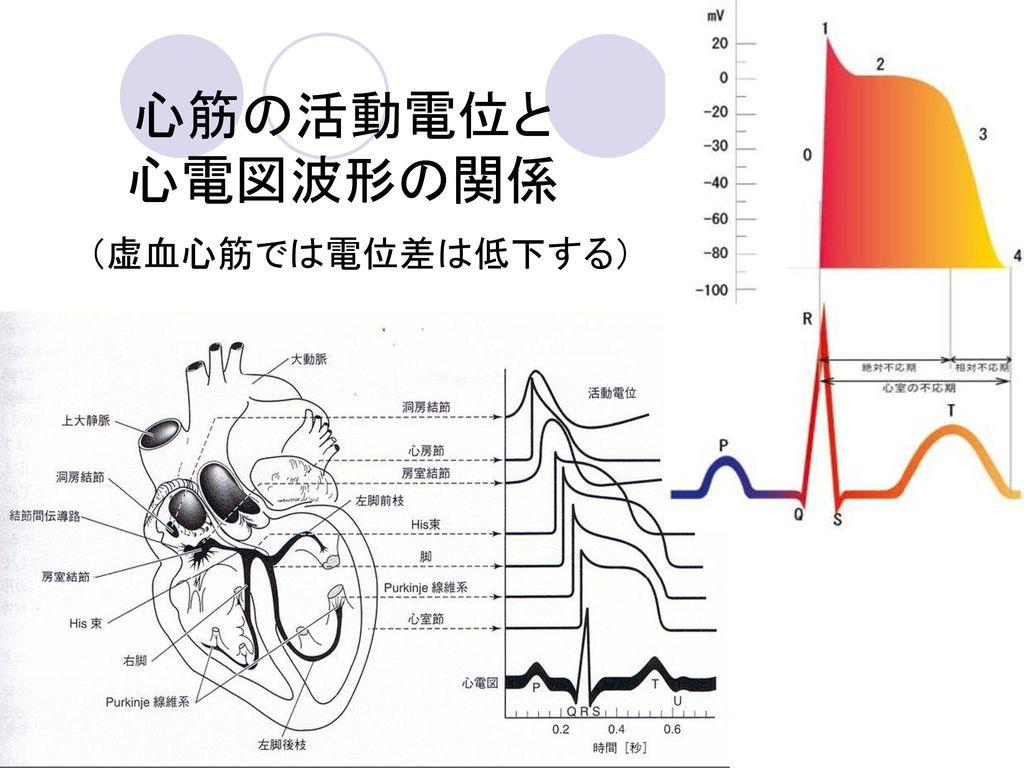 心筋の活動電位と 心電図波形の関係 (虚血心筋では電位差は低下する)