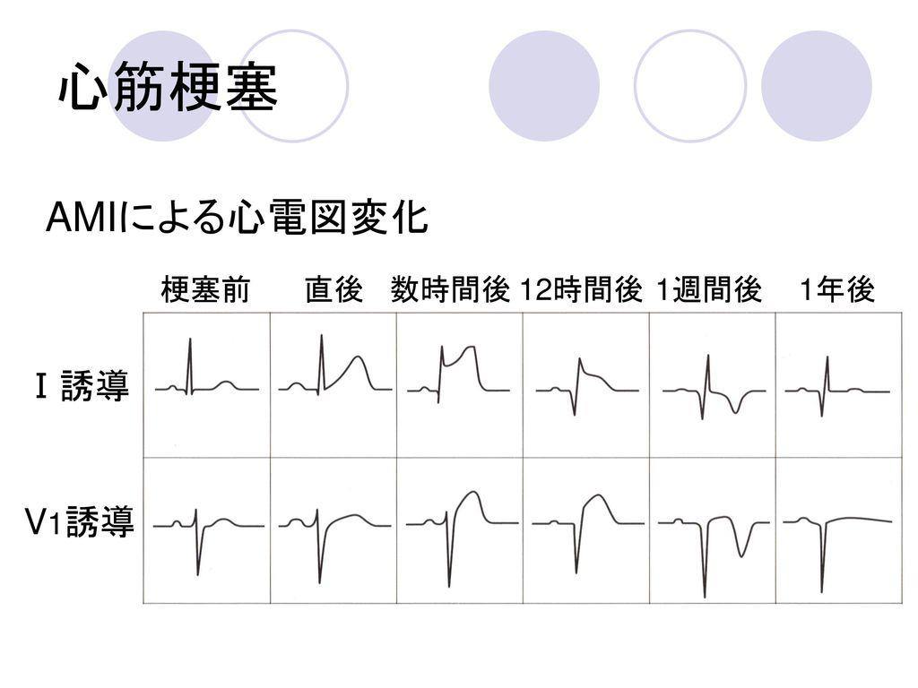 心筋梗塞 AMIによる心電図変化 梗塞前 直後 数時間後 12時間後 1週間後 1年後 Ⅰ誘導 V1誘導