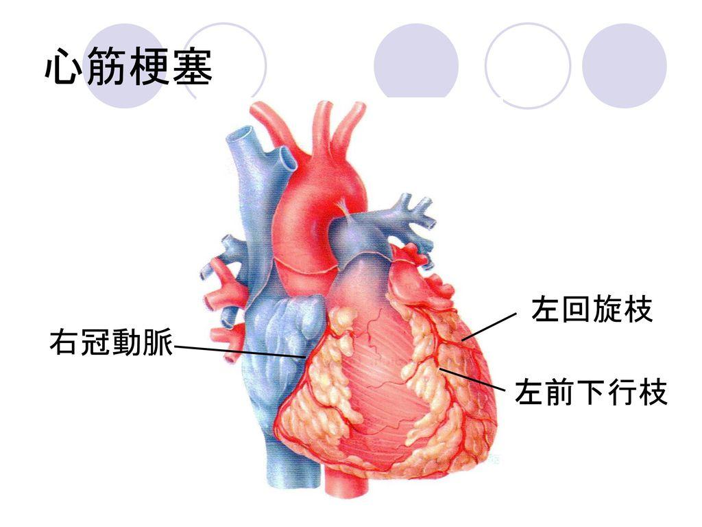 心筋梗塞 左回旋枝 右冠動脈 左前下行枝