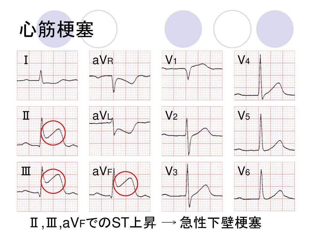 心筋梗塞 Ⅰ aVR V1 V4 Ⅱ aVL V2 V5 Ⅲ aVF V3 V6 Ⅱ,Ⅲ,aVFでのST上昇 急性下壁梗塞