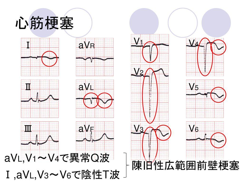心筋梗塞 aVL,V1~V4で異常Q波 陳旧性広範囲前壁梗塞 Ⅰ,aVL,V3~V6で陰性T波 V1 V4 Ⅰ aVR V2 Ⅱ aVL