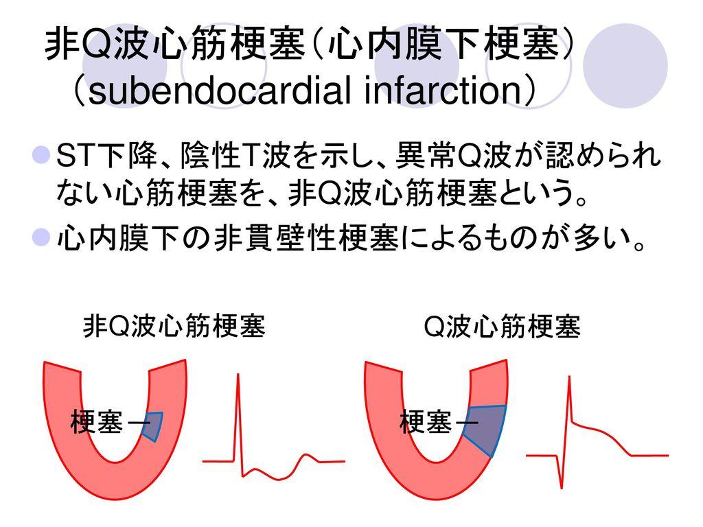 非Q波心筋梗塞(心内膜下梗塞) (subendocardial infarction)