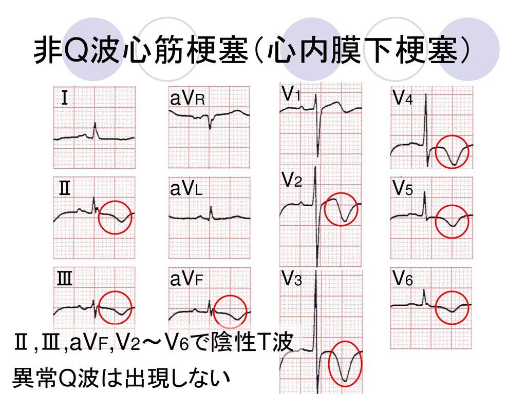 非Q波心筋梗塞(心内膜下梗塞) Ⅱ,Ⅲ,aVF,V2~V6で陰性T波 異常Q波は出現しない V1 Ⅰ aVR V4 V2 Ⅱ aVL V5