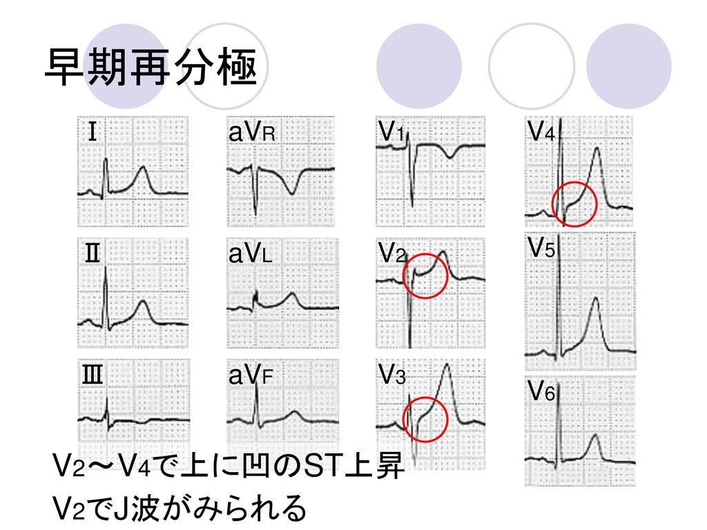 早期再分極 Ⅰ aVR V1 V4 V5 Ⅱ aVL V2 Ⅲ aVF V3 V6 V2~V4で上に凹のST上昇 V2でJ波がみられる